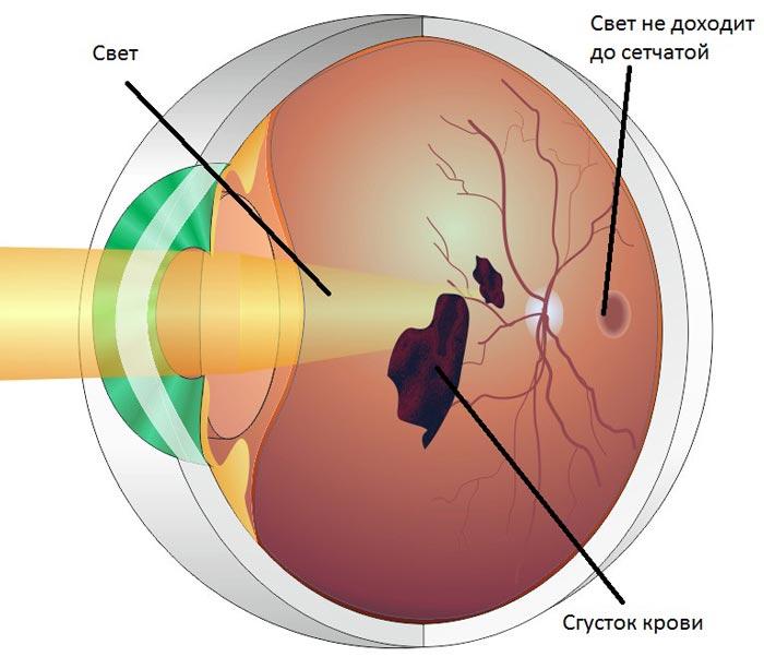 Diabeticheskaja-retinopatija