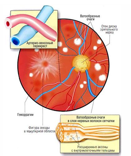 Gipertonicheskaja-retinopatija